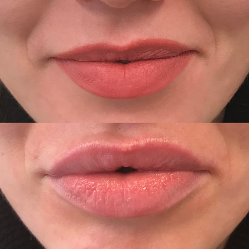 lip fillers in Altrincham, Cheshire