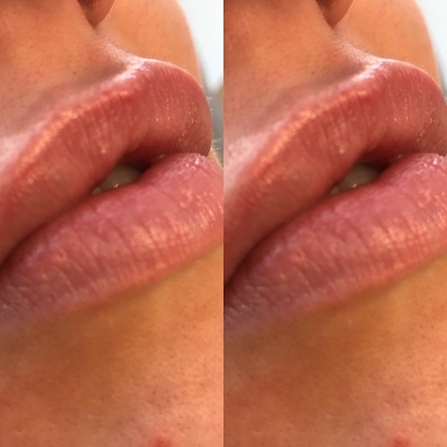 Better lips with dermal fillers